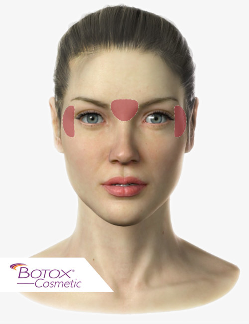 female-dr-botox